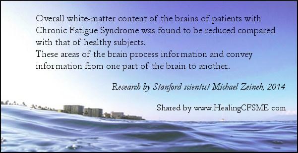 research into the brain and Myalgic Encephalomyelitis